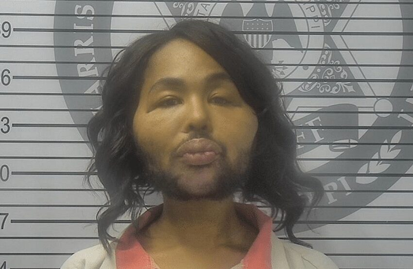 Alabama Woman Pleads Guilty To Robbing A Bank To Pay For Plastic Surgery Procedure