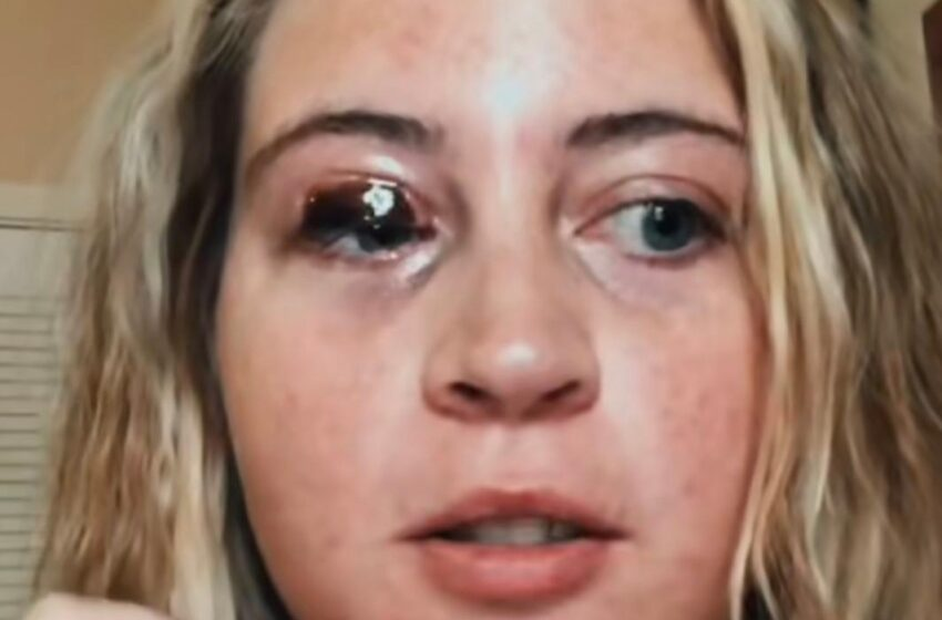 Lash Tech's Dog Bit Woman's Eyelid Off, Woman Wants Lash Tech To Pay For Medical Expenses