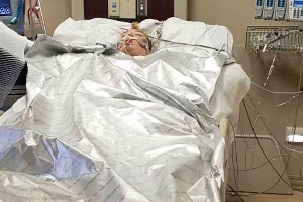 Girl In Coma With Burns To 90% Of Body After Jumping In Hot Spring To Save Dog
